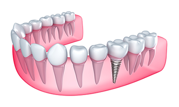 Dental Implants Huntsville
