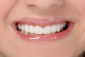 Snap-On Smile teeth after